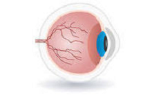 Diabetes and Retinopathy